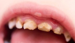 Mundhygiene der Tochter vernachlässigt: Eltern verhaftet