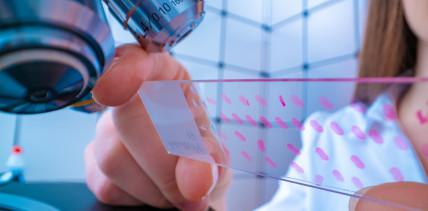 Krebs: Biopsie bald durch Speicheltest abgelöst?