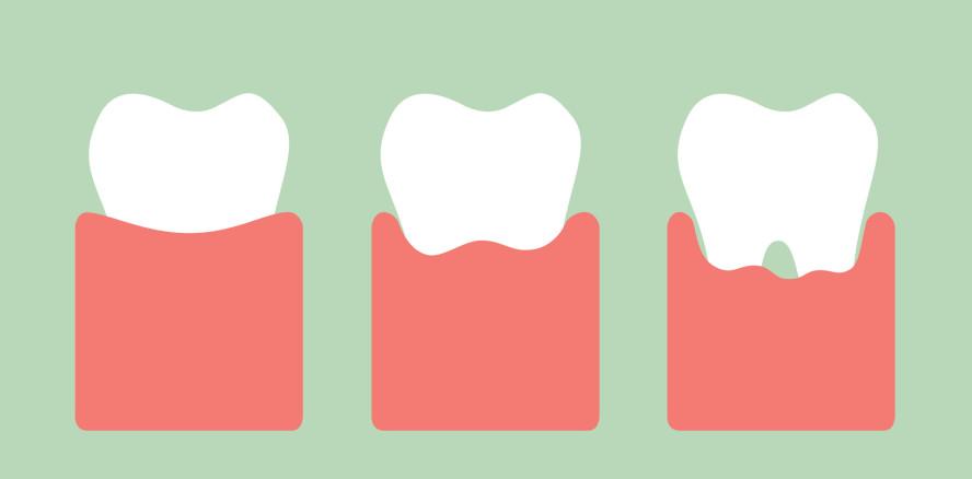 Krebsrisiko: Bei Parodontitis um bis zu 50 Prozent höher