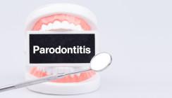 #gumhealthday: Europäischer Tag der Parodontologie