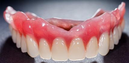 Update: S3-Leitlinie zur Versorgung des zahnlosen Oberkiefers