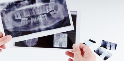 Neue S3-Leitlinie: Rehabilitation von Patienten mit Zahnnichtanlagen