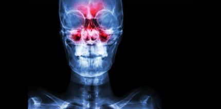 "Aktualisierte S2k-Leitlinie: ""Odontogene Sinusitis maxillaris"""