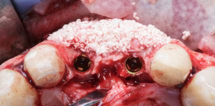 Leitlinien-Update für die Anwendung von Knochenersatzmaterialien
