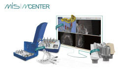 MCENTER und MGUIDE: Rundum-Lösung für digital navigierte Implantation