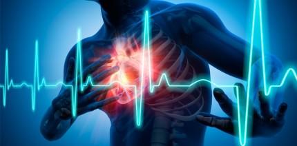 """""""Time is Muscle"""": Herzinfarkt im Praxisalltag"""
