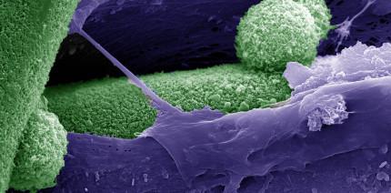 Hauptschalter für die Regeneration von Knochengewebe identifiziert