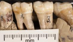 Auch Neandertaler praktizierten schon Zahnmedizin