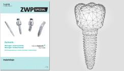 """Schwerpunktthema """"Implantologie"""": Aktuelles ZWP spezial jetzt online"""