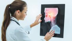 Neue Leitlinienempfehlungen zum Mundhöhlenkarzinom