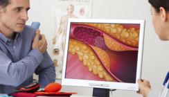 Orale Bakterien: Welche Rolle spielen sie beim Schlaganfall?