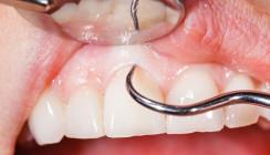 ÖGP begrüßt Aufwertung der Parodontitisbehandlung