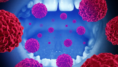 Parodontitisbakterien bevölkern Mundhöhlenkarzinome