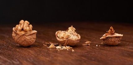 Chronische Parodontitis erhöht das Alzheimer-Risiko um 70 Prozent