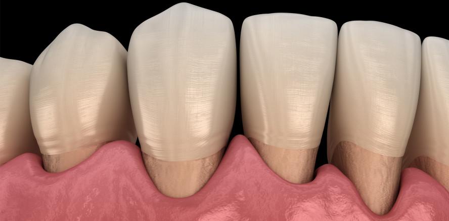 Parodontitis: Membran zur Geweberegeneration entwickelt