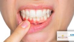Parodontitis endlich wirksam bekämpfen!