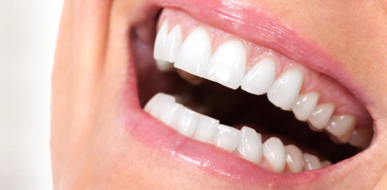 Spezieller Laser gegen dunkle Zahnfleischverfärbungen