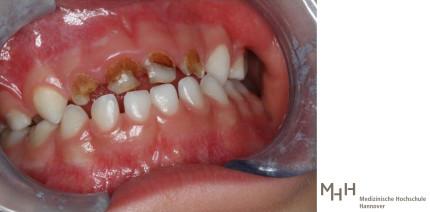 Karies und Kreidezähne: Schlechte Zähne bei Kindern nehmen zu