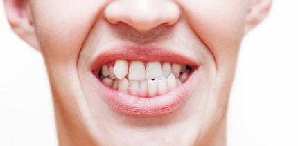 Urteil am OLG: Eine Zahnfehlstellung ist keine Anomalie