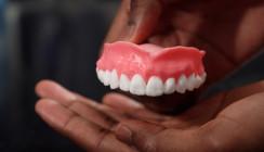 Totalprothesen aus dem 3-D-Drucker sollen Infektionen verhindern
