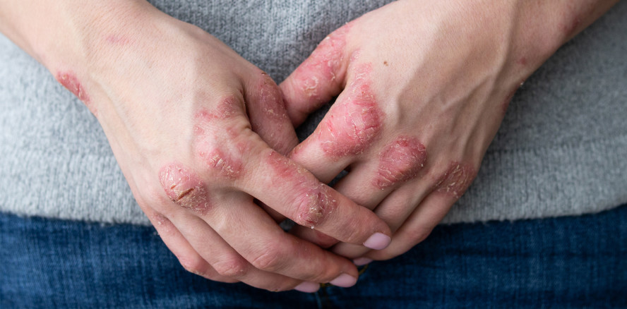 Psoriasis: Gute Mundgesundheit mildert Symptome