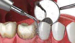 Professionelle Zahnreinigung in Praxis und Klinik