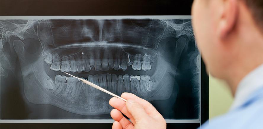 BfS warnt: Unnötige Röntgenanwendungen vermeiden