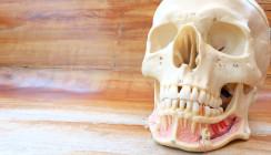 Forscher entwickeln stabile Strukturen für Kieferknochen