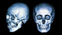 Weniger Röntgenaufnahmen – Schädelform in 3D berechnen