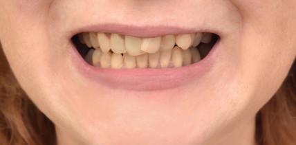 Perfekte Zähne sind out – jetzt kommt schief und gelb!