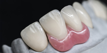 Schweizer Gericht: Prothesen sind adäquater Zahnersatz