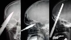 Skurrile Verletzungen: Messer und andere Gegenstände im Kopf