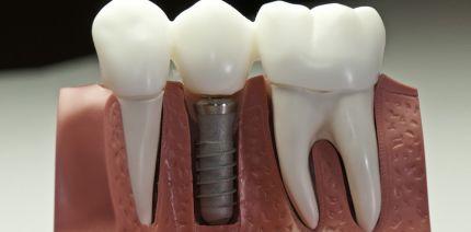 Speichelpeptide verbessern die Osseointegration von Implantaten