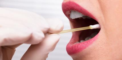 Speichelbiomarker zur Früherkennung von Mundkrebs