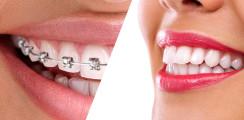 Studie: Zahnkorrekturen stärken nicht immer das Selbstbewusstsein