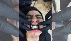 Schwarzes Zahnfleisch: Neuer Trend beim Tätowierer?