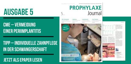 Aktuelles Prophylaxe Journal: Mundhygiene individuell & präventiv