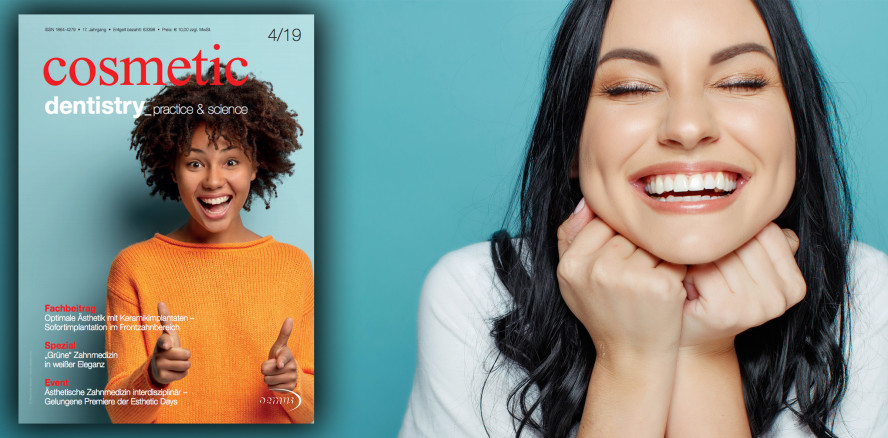 Rot-weiße Ästhetik im Fokus der cosmetic dentistry
