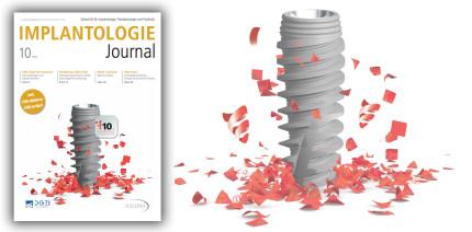 Aktuelles Implantologie Journal: Digitalisierung im Fokus