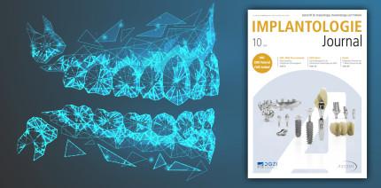 Aktuelles Implantologie Journal zum Thema Digitalisierung