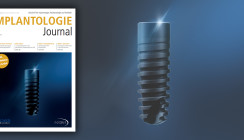 Aktuelles Implantologie Journal jetzt als ePaper lesen