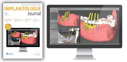 Dezember-Ausgabe des Implantologie Journal online lesen
