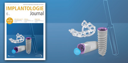 Juni-Ausgabe des Implantologie Journal: Update GBR und GTR