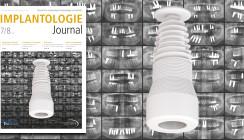 Sommerausgabe des Implantologie Journal: Keramik, Kunststoffe & Co.