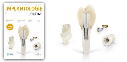 Aktuelles Implantologie Journal jetzt online lesen