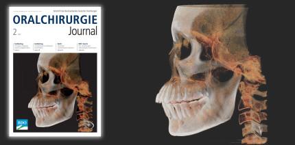 Aktuelles Oralchirurgie Journal ab sofort verfügbar