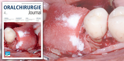 Themenvielfalt im aktuellen Oralchirurgie Journal