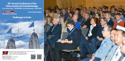 «Challenges in Endo» – SSE-Jahreskongress in Zürich