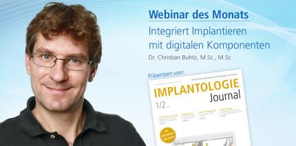 Webinar: Integriert Implantieren mit digitalen Komponenten