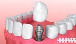 Klebtechniker wollen für längeren Halt beim Zahnersatz sorgen